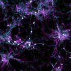 Salk scientists developed a new technique to grow aged brain cells from patients' skin. Fibroblasts (cells in connective tissue) from elderly human donors are directly converted into induced neurons, shown. (credit: Salk Institute)