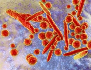Infections with Genital Mycoplasmas in Women