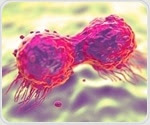 Scientists find way to reduce breast cancer spread
