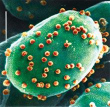 Chloroviruses (red) on an algal cell.