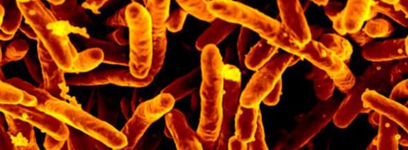 Tuberculosis-causing bacteria