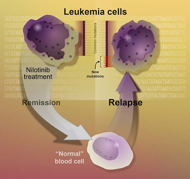 Leukemia cells undergoing remission and relapse