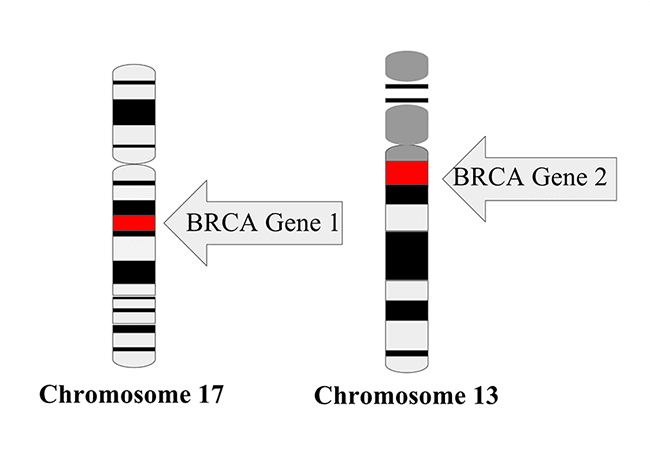 Chromosome 17 with BRCA Gene 1 and Chromosome 13 with BRCA gene 2