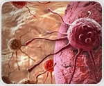 Liquid biopsies could be used as new predictive marker for metastatic TNBC
