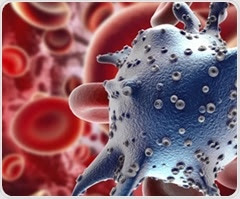 Measurement of tumor's metabolic activitycould help determine prostate cancer prognosis