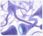 Researcher finds that shape of misfolded proteins may contribute to Alzheimer's, Parkinson's and Huntington's disease