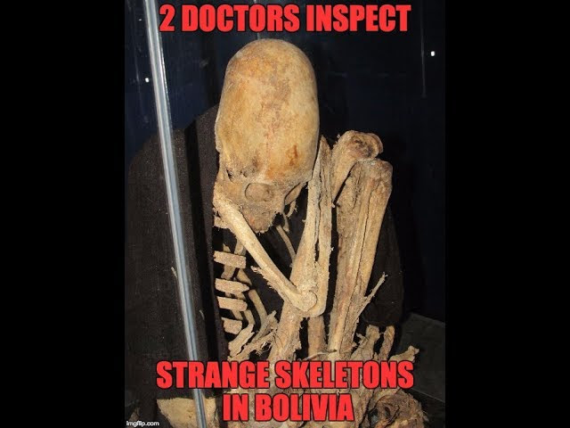 Two American Doctors Inspect Strange Ancient Skeletons In Bolivia  Sddefault