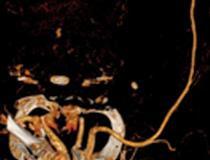 Trombose da artéria braquial em um homem de 51 anos que deu entrada no pronto-socorro com dor aguda em membro superior esquerdo e dormência.  O paciente tinha história de tosse e febre há 2 semanas e foi confirmado como COVID-19 positivo.  (a) A imagem angiográfica coronal da TC da extremidade superior esquerda mostra uma oclusão segmentar abrupta (seta) da artéria braquial distal esquerda, indicativa de tromboembolização arterial periférica.  A projeção de intensidade máxima tridimensional coronal mostra corte abrupto (seta) de