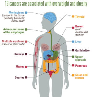 Medscape CE Trends in Incidence of Cancers Associated with Overweight and Obesity — United States, 2005–2014