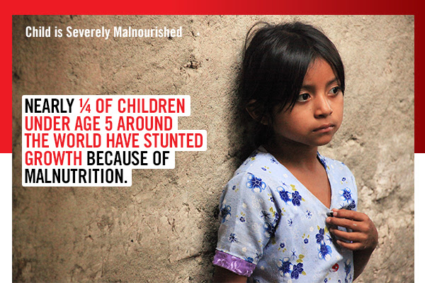 Child is Severely  Malnourished -         Nearly 1/4 of children under age 5 around the world have stunted  growth because of malnutrition. -
