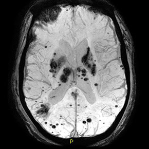 MRI of intracerebral haemorrhages — Copyright: Living Art Enterprises/Science Photo Library