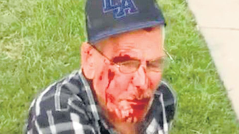 El latino atacado en Los Angeles.