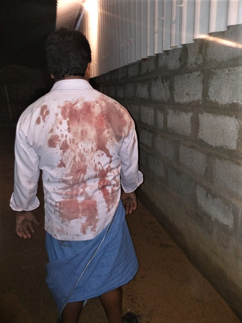 Christian attacked by Hindu extremists in Veppur village, Vellore District, on Sept. 13, 2018. (Morning Star News)