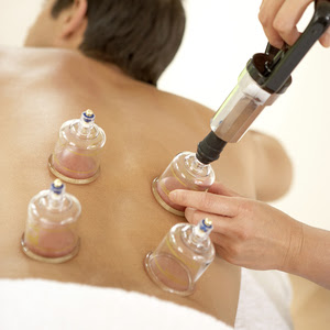 cupping back