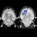 Targeted Nanochains in Brain Tumor