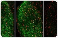 New type of fatty acid can slow down overreactive immune system