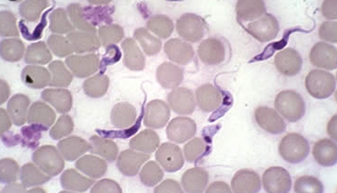 Microscopy Expert: Vials Contain Graphene Oxide, Parasites, Stainless Steel Cg9H6rdCCu