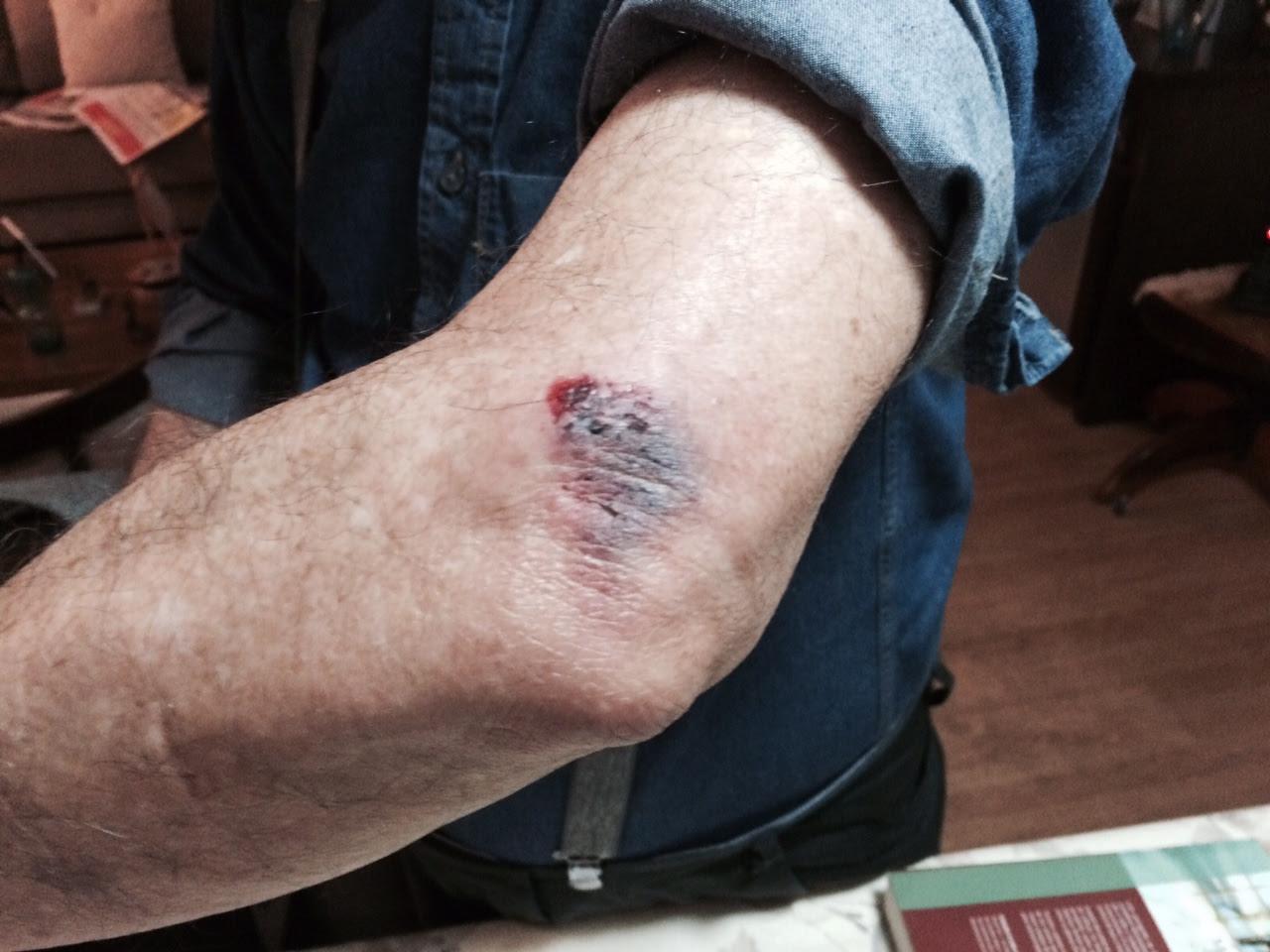Roberto Amaral atingido por bala de borracha.