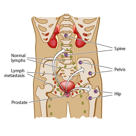 diagram of body with metastatic prostate cancer