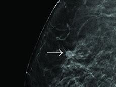 Nódulos en los senos descubiertos durante un examen de detección.