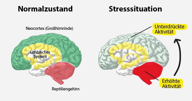 https://www.habitgym.de/wp-content/uploads/2017/05/Stressfaktoren-Das-Gehirn-im-Stress.jpg
