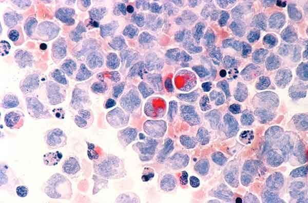 Dos nuevas terapias aprobadas para leucemia mieloide aguda