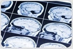 New strategies for preventing and coping with rising burden of brain diseases