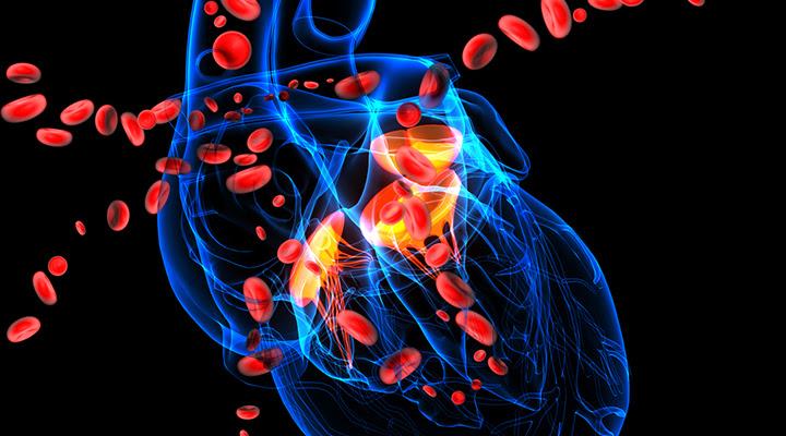 Atherosclerosis and Cardiovascular Disease
