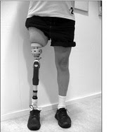 Osseoanchored Prostheses for the Rehab of Amputees