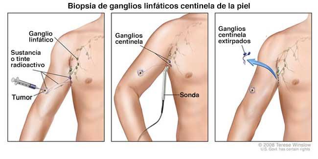 Biopsia de ganglios