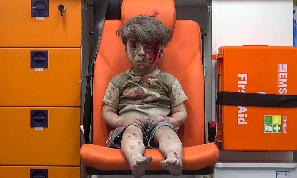 Omran rescued from a Russian airstrike