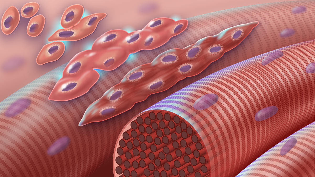 The graphic depicts normal myoblasts (early muscle cells with a single nucleus) fusing together to form muscle cells with more than one nucleus. The cascade is disrupted in Carey-Fineman-Ziter syndrome, because of a defect in the membrane protein, myomaker, which is required for cell-cell fusion.