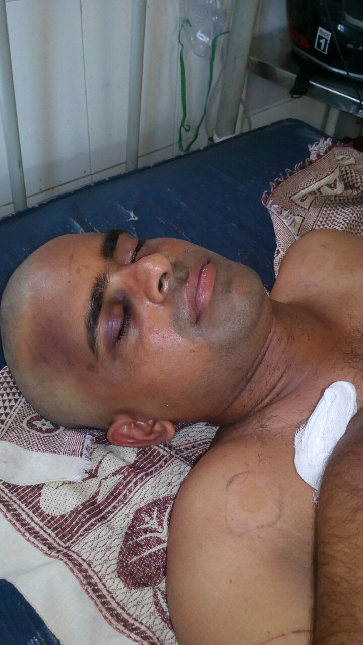 Pastor Banothu Sevya after attack in Telangana state, India. (Morning Star News courtesy of family)