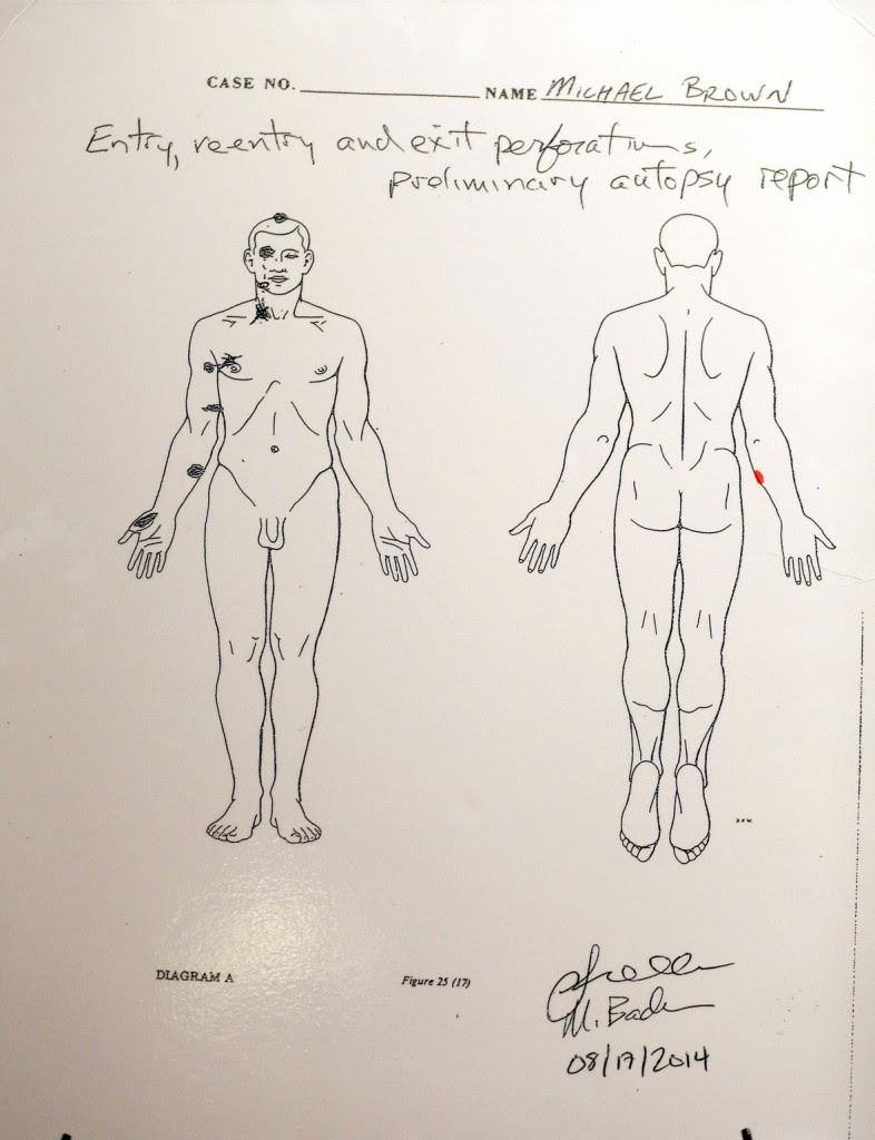 PososAnarquia_Autopsia_Brown