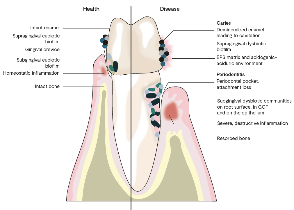 Tooth Health and Disease