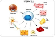 Stem Cell Therapy for Alzheimer's