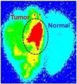 Glioma-Targeting Nanoparticles