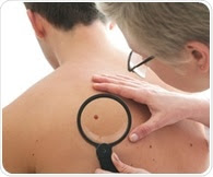 Study reveals link between circulating tumor cells and relapse in late-stage melanoma patients