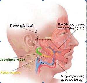παράλυση του στόματος