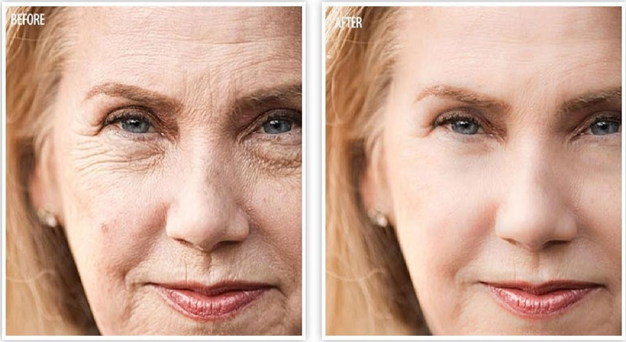 Image result for free anti-age before and after photos]