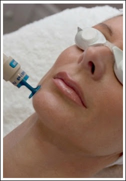 lasertreatments