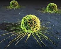 Resultado de imagen para Estudio accidental descubre que la quimioterapia hace que el cáncer sea mucho peor