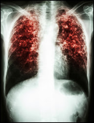 In 2014, a total of 9,412 new tuberculosis cases were reported in the United States, with an incidence of 3.0 cases per 100,000 population.