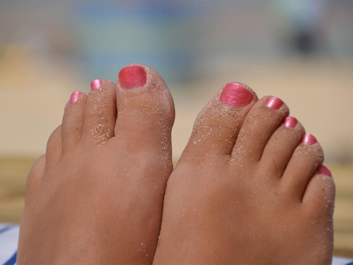 5 remedios para acabar con el problema de los pies hinchados
