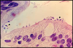 Cryptosporidium parasites in a patient's small bowel epithelial cell lining.
