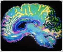 Ultra-slow waves in the brain directly linked to consciousness