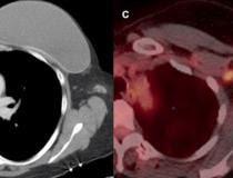 Exemplo de adenopatia axilar causada por vacina.  Mulher de 46 anos com câncer de mama esquerdo triplo negativo, livre de doença há três anos.  À esquerda, a tomografia computadorizada axial de tórax com contraste de vigilância mostrou nova linfadenopatia axilar esquerda com fita de gordura 15 dias após a primeira vacina COVID-19.  À direita, avaliação adicional com PET / CT seis dias após a 2ª dose da vacina demonstrou múltiplos linfonodos axilares esquerdos hipermetabólicos aumentados.  Leia mais no estudo original.  Imagem cortesia da RSNA.