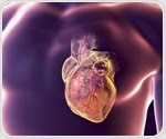 Four-step heart attack protocol can improve outcomes and reduce gender disparities in care