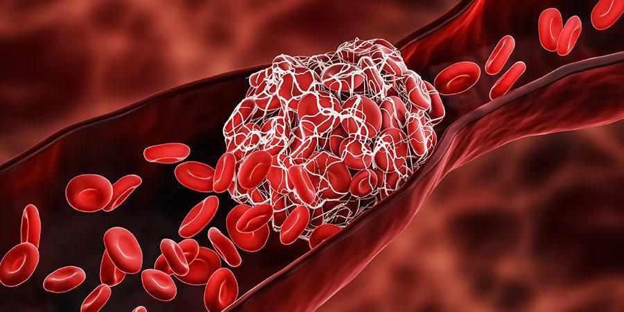 Foto de un coágulo de sangre en un vaso venoso