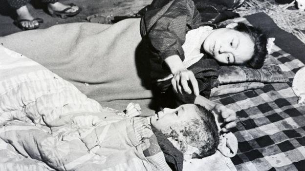 Mãe consolando o filho queimado pela bomba de Hiroshima